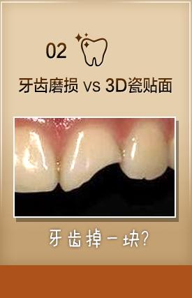 佳美口腔引进的美国3m纳米树脂补牙采用的是当代科技生产的补牙材料